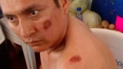 Fallido intento de hacer abortar una protesta de vecinos de Chablekal ante Palacio